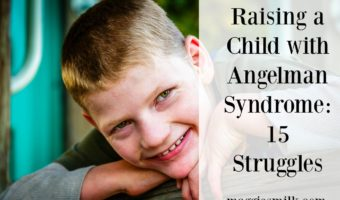 Raising a child with Angelman Syndrome can be challenging. Here are 15 specific things this AS mom struggles with.